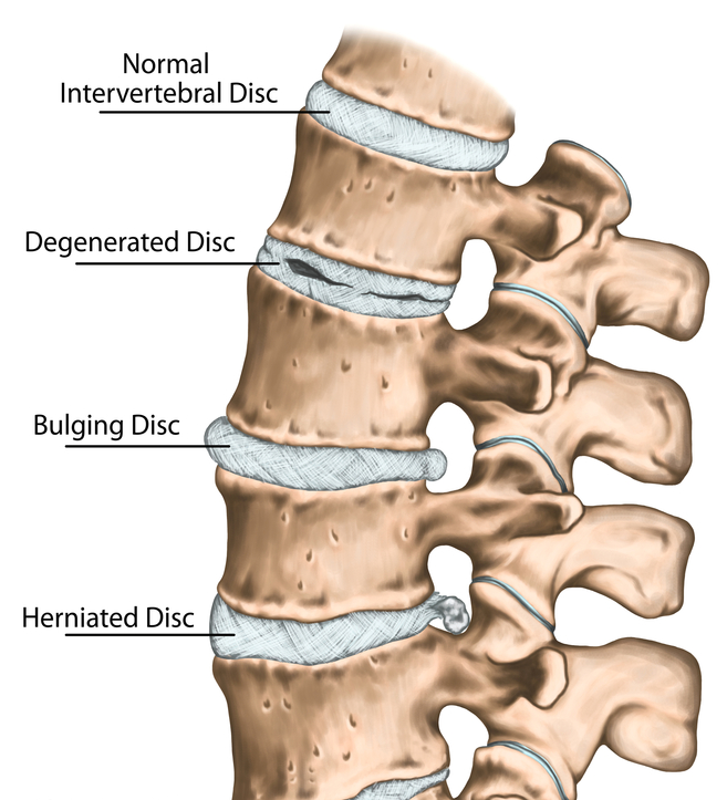Disc Bulge, Disc Herniation, Degenerated Disc, Low back pain, Neck Pain, Portland Physical Therapy