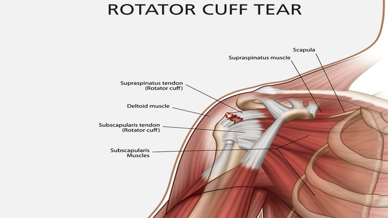 Rotator cuff tear, Rotator Cuff, Shoulder Pain, Portland Physical Therapy
